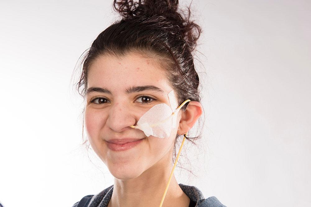 Jeune fille avec sonde nasogastrique