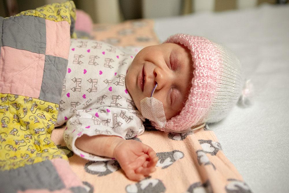Petit bébé avec sonde nasogastrique